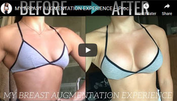 MY-BREAST-AUGMENTATION-EXPERIENCE