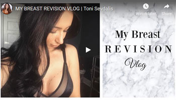 MY-BREAST-REVISION-VLOG